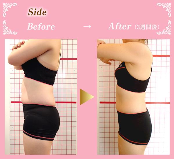 笑み美容整体院のセルライト施術Before&After02
