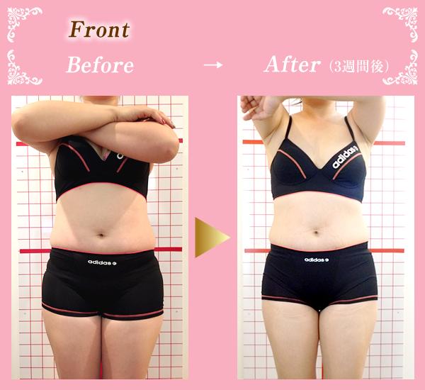 笑み美容整体院のセルライト施術Before&After03