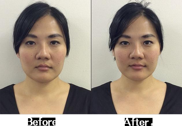 小顔矯正Before&After1