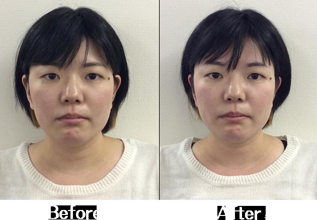 小顔矯正Before&After2