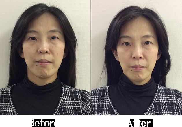小顔矯正Before&After3