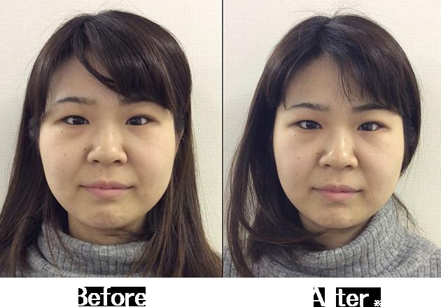 小顔矯正Before&After4